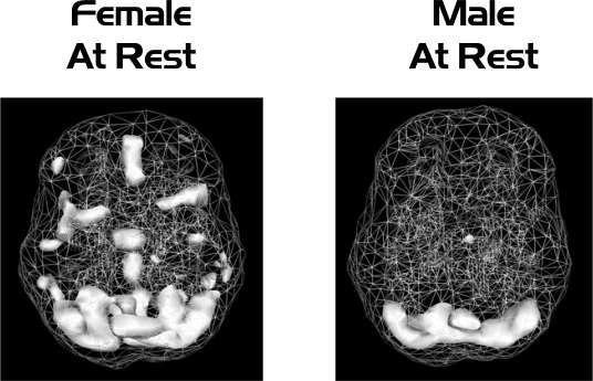 brains-at-rest.jpg
